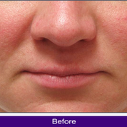 Mandelic Acid Peel Before