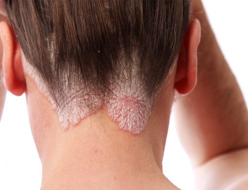 August is National Psoriasis Month